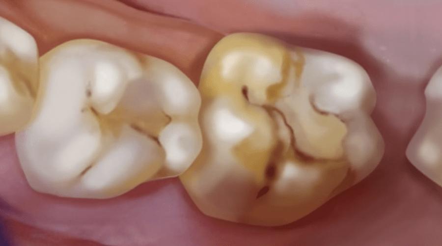 Wenn Kinderzähne bröckeln